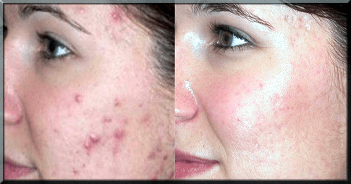 Baking Soda Uses For Skin, Remove Pimple Marks