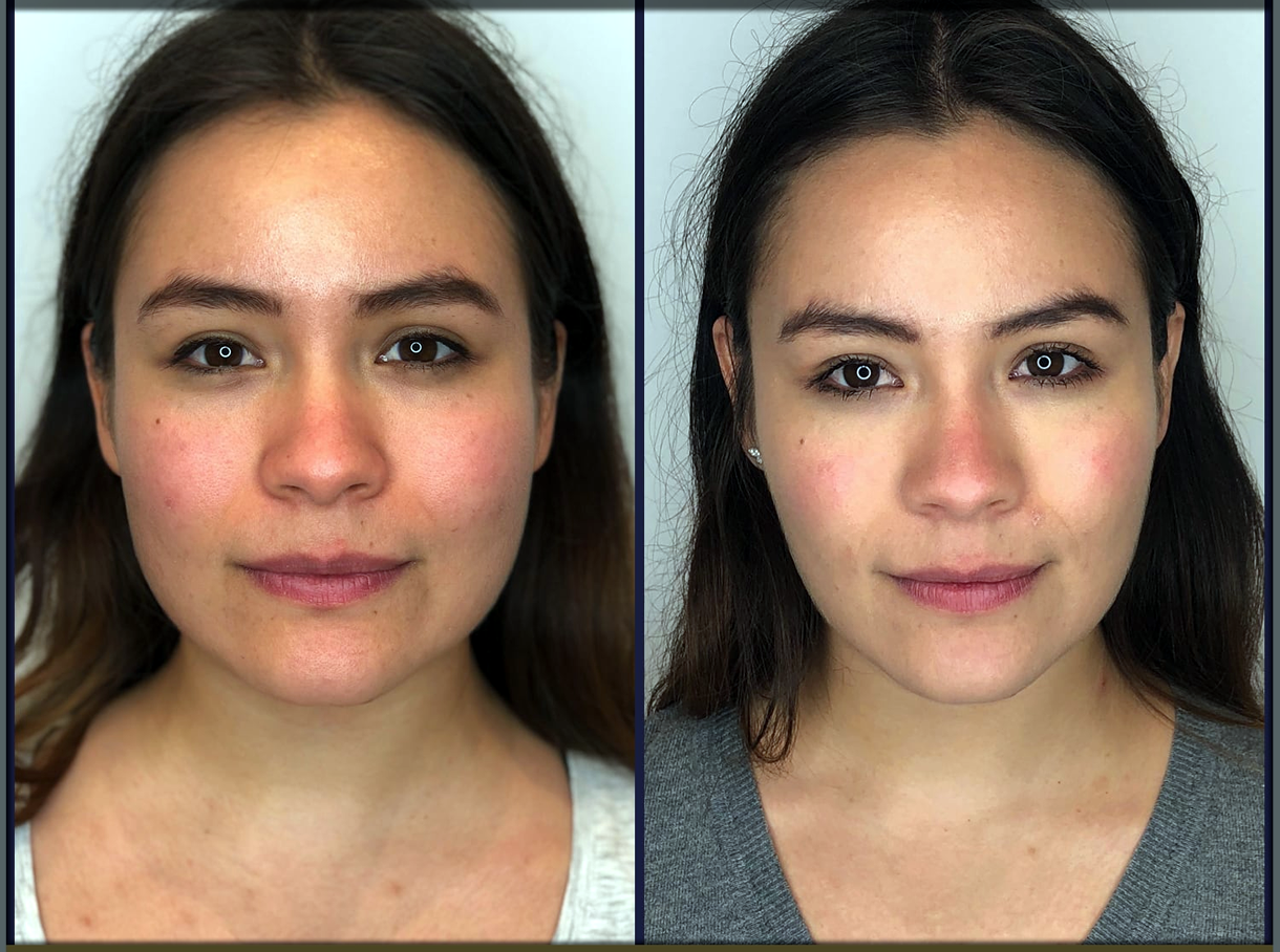 Face Exercises to Slim Face