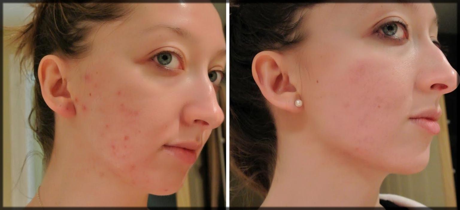 Pimple free skin by using multani mitti