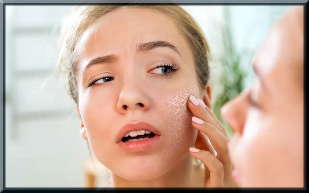 how to treat with dry skin