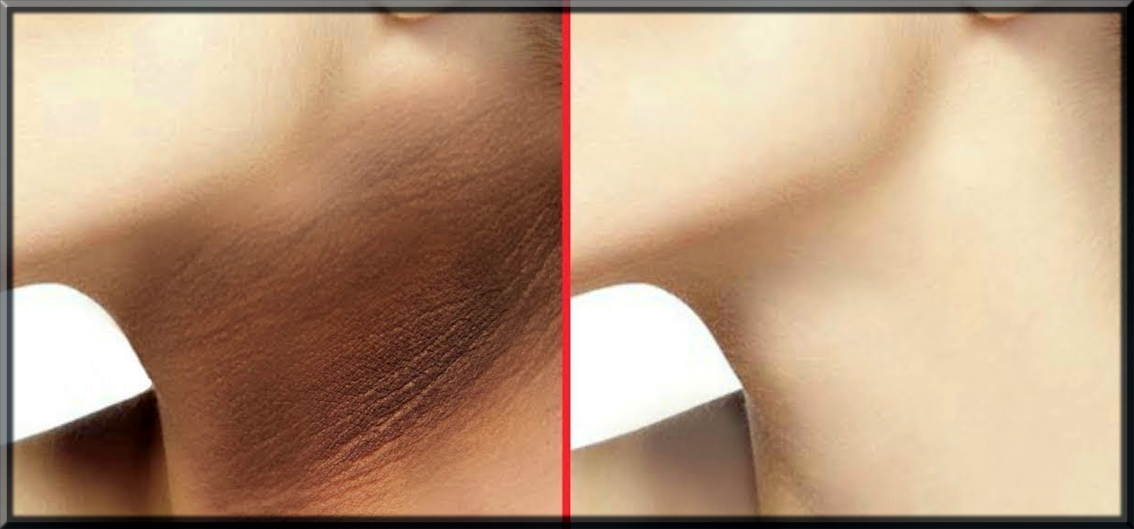 remove neck blackening