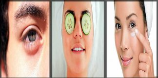 11 Healthy Ways to Reduce Eye Bags - How to Get Rid of Puffy Eyes
