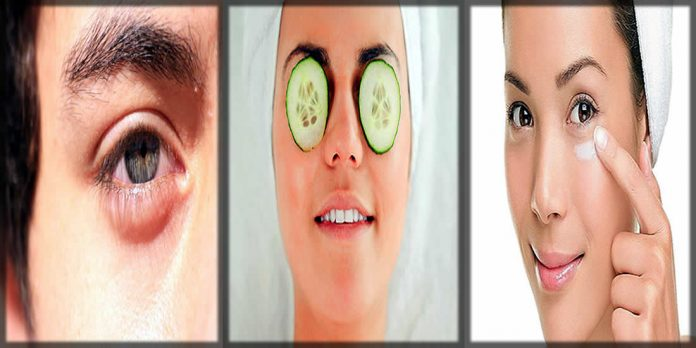 Ways to reduce the eye puffiness