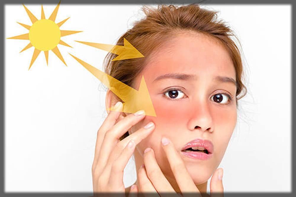 avoid direct sunlight for whiten skin