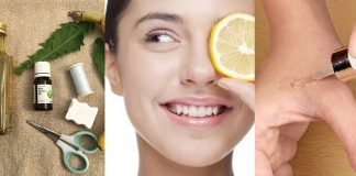 Best Home Remedies to Remove Skin Tags - Skin Tag Removal Creams