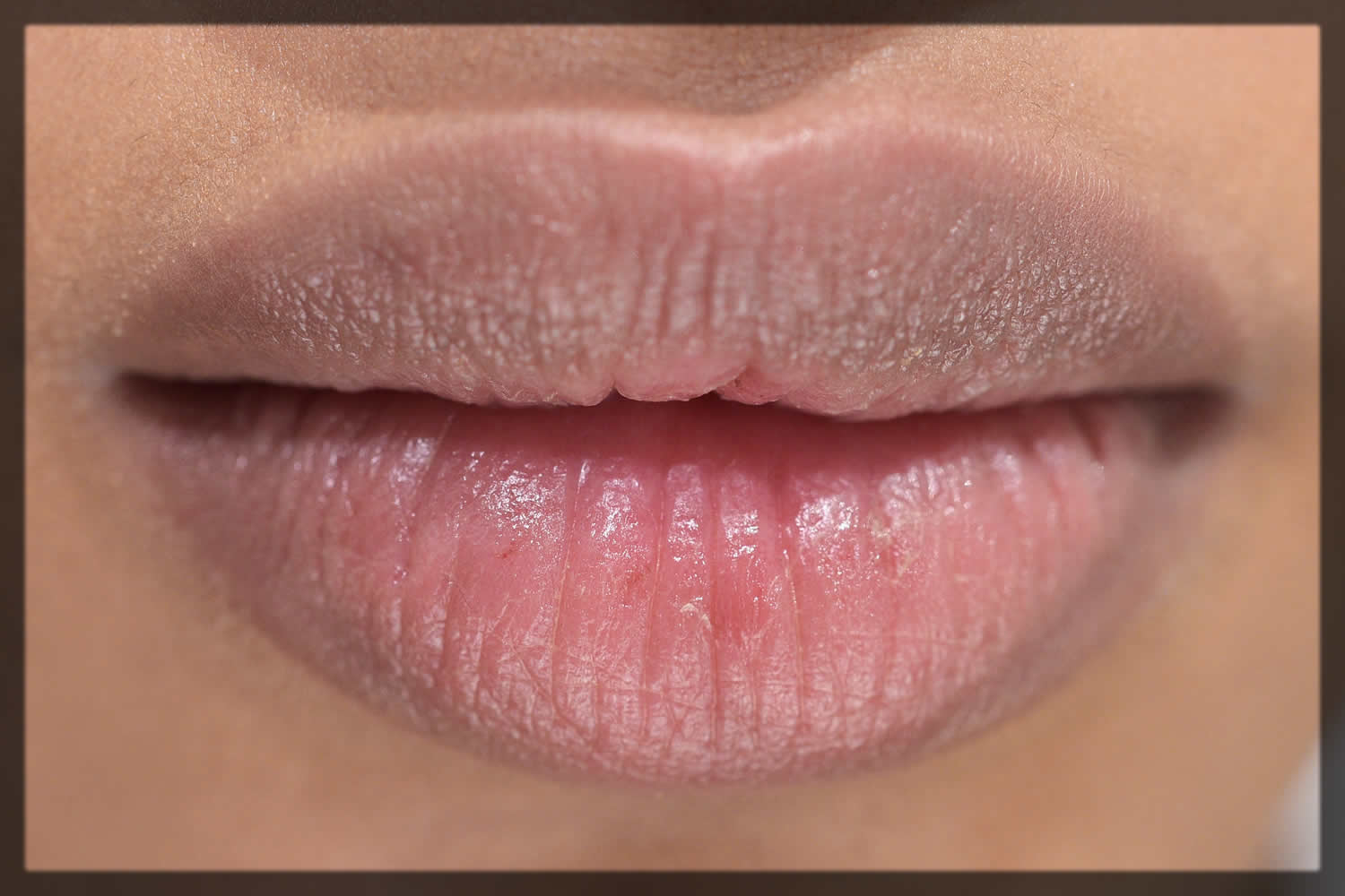 dark pigmented lips Home Remedies For Pink Lips