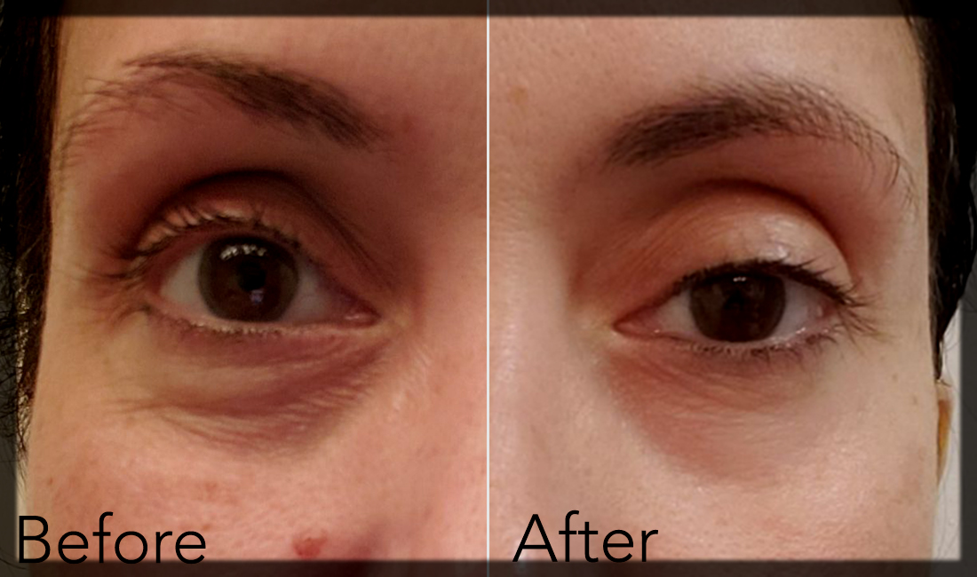 Eye Cream for Remove Dark Spots